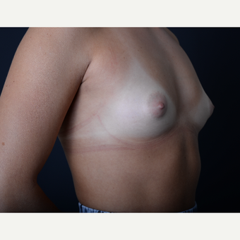 18-24 year old woman treated with Breast Augmentation before 3384291