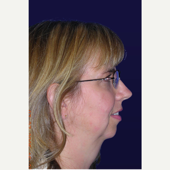 35-44 year old woman treated with Chin Implant before 3439634