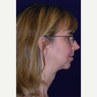 35-44 year old woman treated with Chin Implant after 3439634