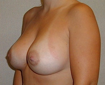 28 year old female for breast augmentation 1030272