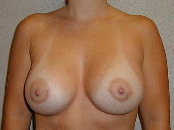 28 year old female for breast augmentation after 1030272