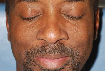 Male Patient Treated for Facial Moles after 1044862