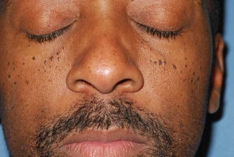 Male Patient Treated for Facial Moles before 1044862