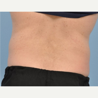 45-54 year old man treated with CoolSculpting before 3500958