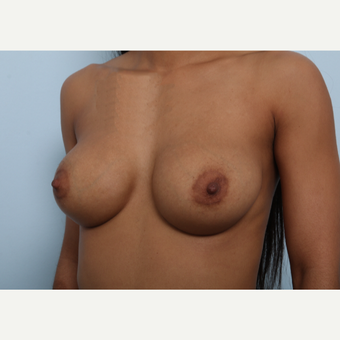 Breast Augmentation after 3459708