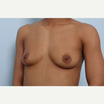 Breast Augmentation before 3459708