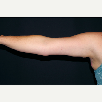 25-34 year old woman treated with Arm Lift after 3630587