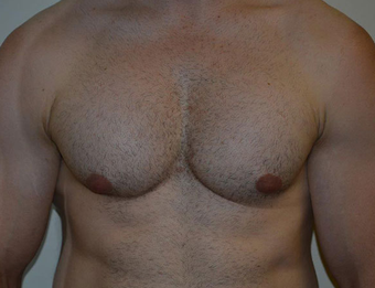 Male Treated for Lack of Chest Definition after 1016340