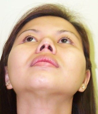 Asian Rhinoplasty  after 684233