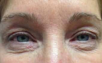 45-54 year old woman treated with Eyelid Surgery before 3367443