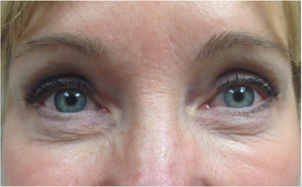 45-54 year old woman treated with Eyelid Surgery after 3367443