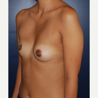 18-24 year old woman treated with Sientra Breast Implants before 3043685