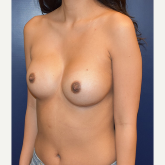 18-24 year old woman treated with Sientra Breast Implants after 3043685