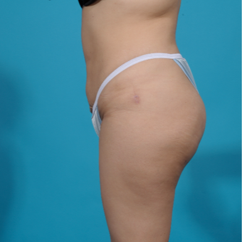 25-34 year old man treated with Brazilian Butt Lift after 3282725