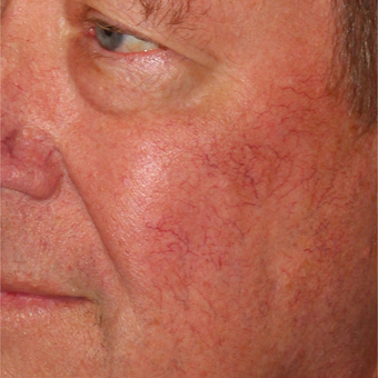 64 year old man treated with Pulsed Dye Laser and Cool Touch Varia after 3414079