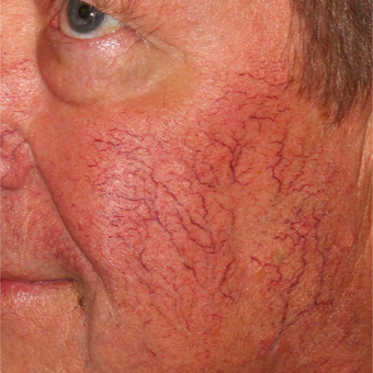 64 year old man treated with Pulsed Dye Laser and Cool Touch Varia before 3414079