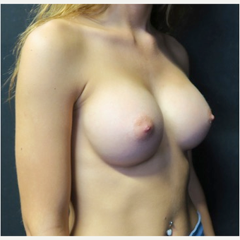 18-24 year old woman treated with Breast Implants after 3318413