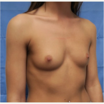 18-24 year old woman treated with Breast Implants before 3318413