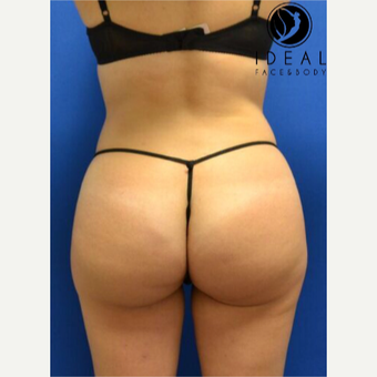 Liposculpture with Fat Transfer after 3260007