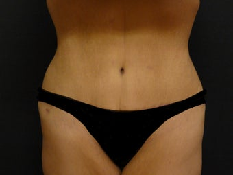 Abdominoplasty  (Tummy Tuck) after 975818