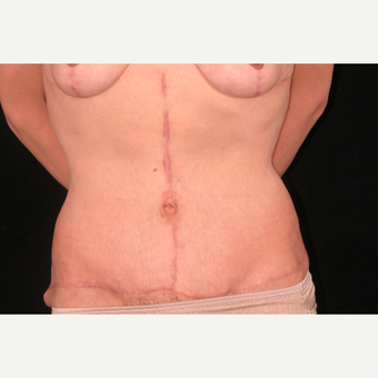 35 year old woman treated with Tummy Tuck after 3052699