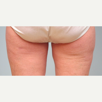 55-64 year old woman treated with Liposuction after 3306137