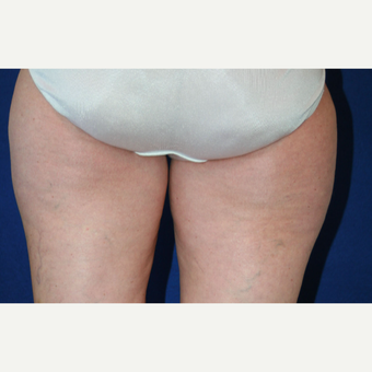 55-64 year old woman treated with Liposuction before 3306137
