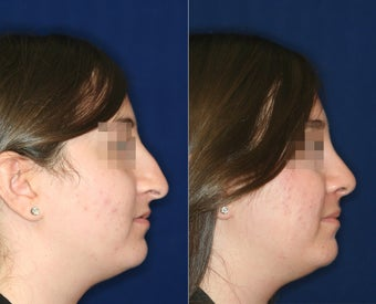 Nose Surgery before 1430760