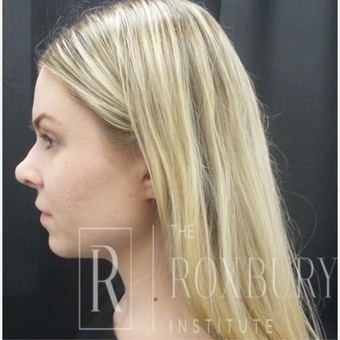 25-34 year old woman treated with Juvederm before 3732737