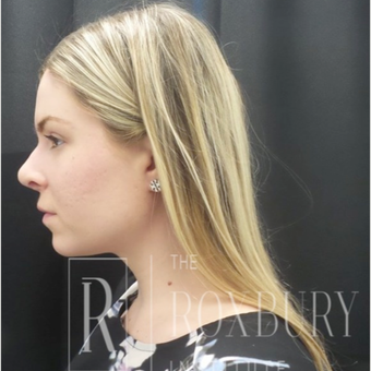 25-34 year old woman treated with Juvederm after 3732737