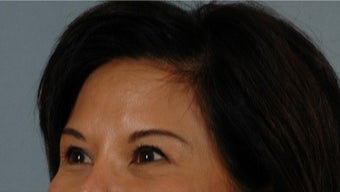 45-54 year old woman treated with Asian Eyelid Surgery after 3615811