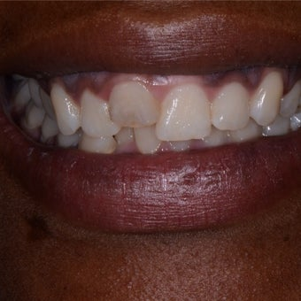 Woman needed a new front tooth