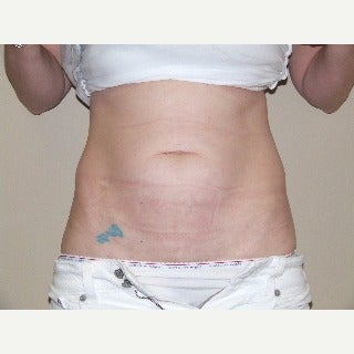 Tummy Tuck before 1911506