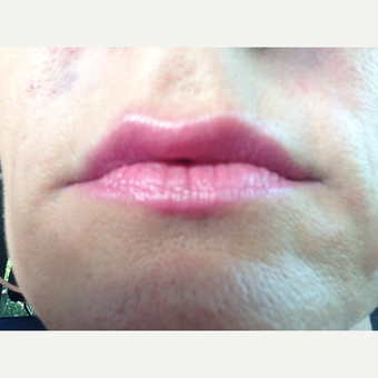 35-44 year old woman treated with Juvederm after 3412863