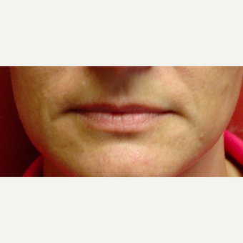35-44 year old woman treated with Juvederm before 3412863