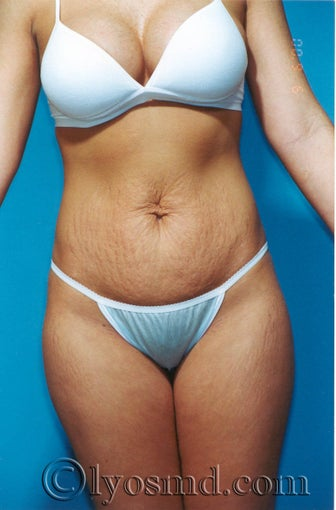 Tummy Tuck before 231887