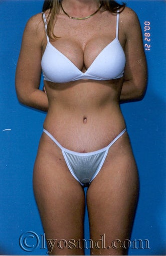 Tummy Tuck after 231887
