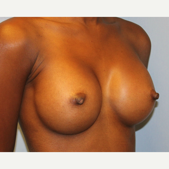 25-34 year old woman treated with Breast Augmentation after 3815629