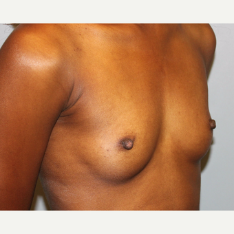 25-34 year old woman treated with Breast Augmentation before 3815629