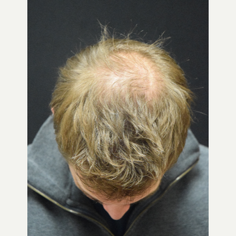35-44 year old man treated with Hair Transplant before 2975281
