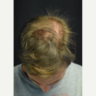 35-44 year old man treated with Hair Transplant after 2975281