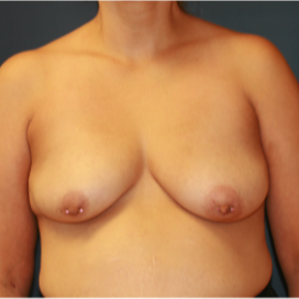 35-44 year old woman treated with Breast Lift with Implants before 3554345
