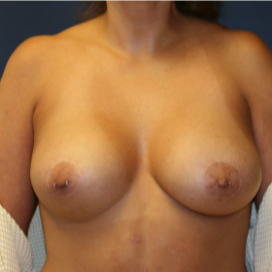 35-44 year old woman treated with Breast Lift with Implants after 3554345