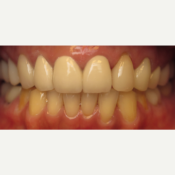 45-54 year old woman treated with Dental Crown after 3260818