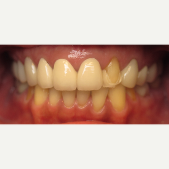 45-54 year old woman treated with Dental Crown before 3260818