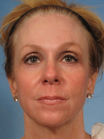 50 year old woman with sun damage who was treated with a Croton Oil/Phenol Peel after 1194025