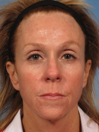 50 year old woman with sun damage who was treated with a Croton Oil/Phenol Peel