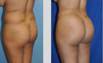 Buttock Augmentation before 271480