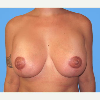 Breast Lift with Implants after 3748643