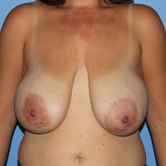 35-44 year old woman treated with Breast Reduction before 3069778